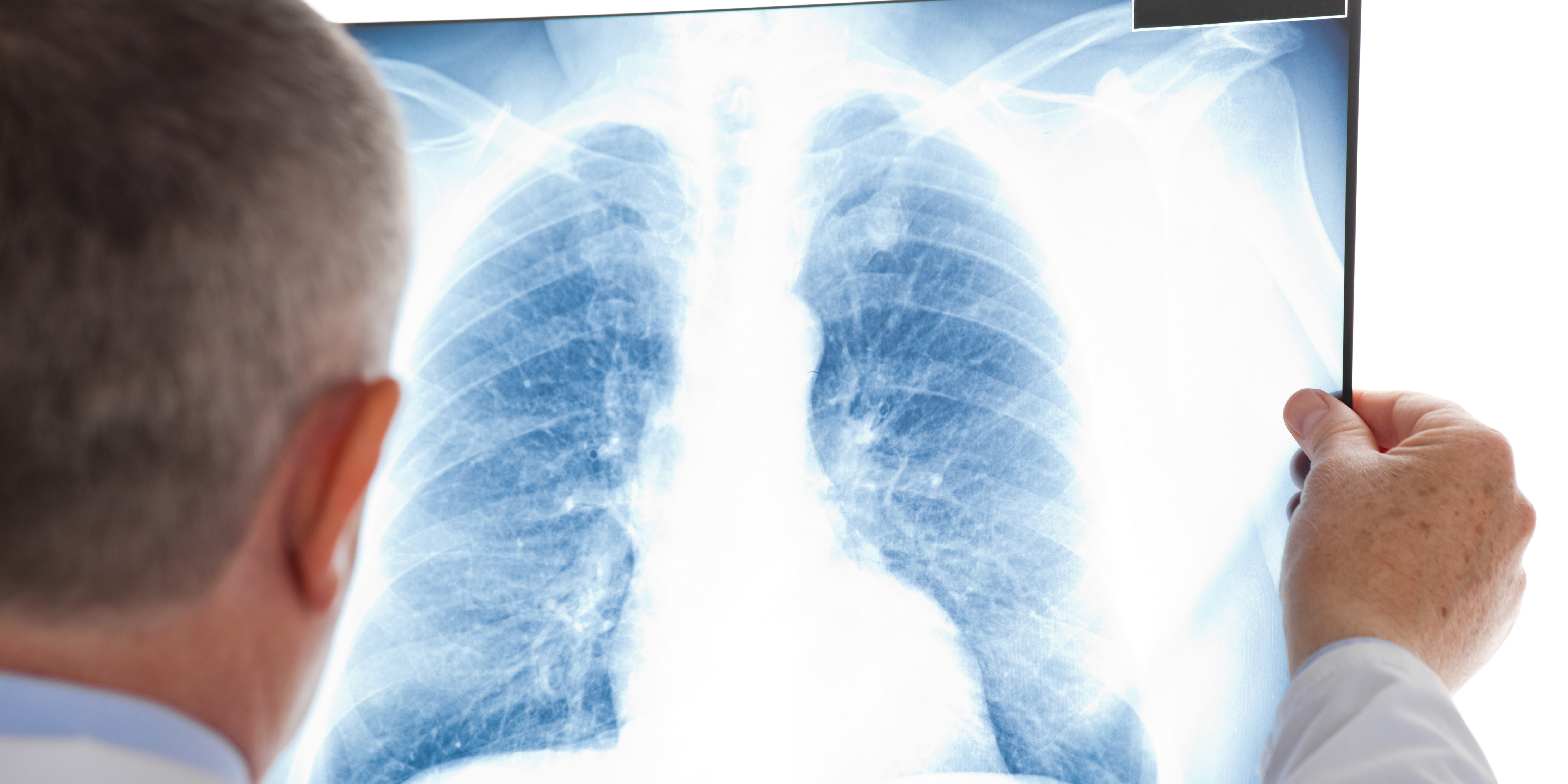 Lung Scan Cropped